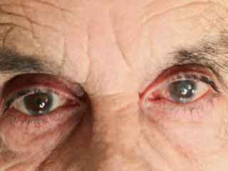<strong>Learn</strong> about the Diagnosis and Treatment for Cataract