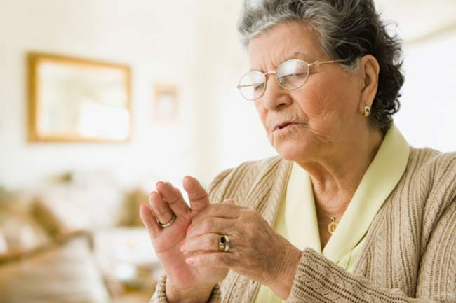 Increase in Weight Increases the Risk of Arthritis