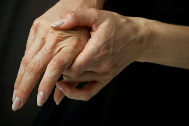 Cracking Knuckles causes Arthritis