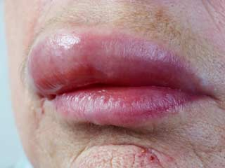 What is the Prognosis of Melkersson Rosenthal Syndrome
