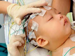 What is the treatment of Holoprosencephaly?
