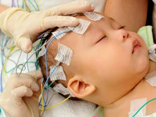 What is Holoprosencephaly?