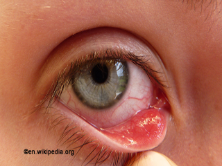 Conjunctivitis and Its Symptom