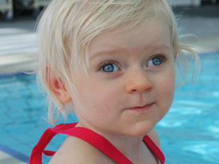 Angelman Syndrome and its Characteristics