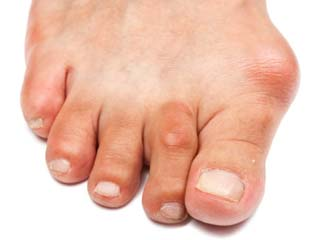 What are the <strong>Symptoms</strong> of Bunion?