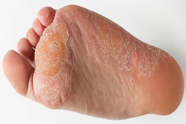 Causes and Treatment of Pain in Soles in Hindi | तलवों में