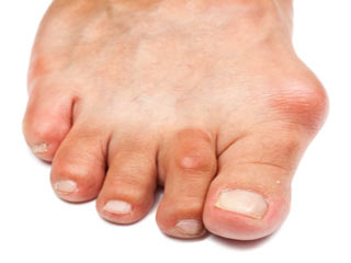 7 Risk Factors of Gout