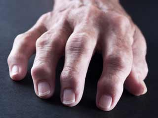 Foods to avoid if you have rheumatoid arthritis