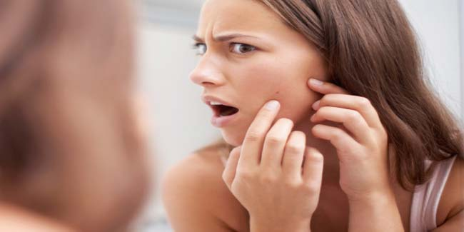 Six Kitchen Remedies to Cure Acne