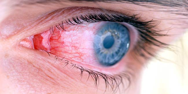 Home remedies to get rid of pink eyes