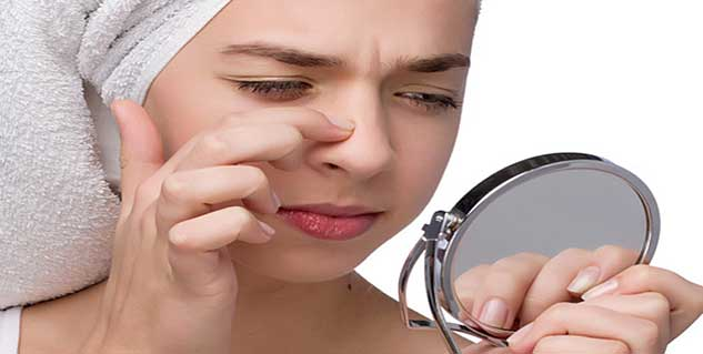 Removing blackheads with hydrogen peroxide