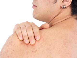 Effective <strong>natural</strong> remedies to clear up back acne