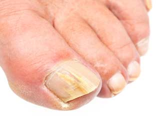 Home Remedies for <strong>Toe</strong>-<strong>nail</strong> Fungus