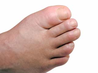 7 Tips to Treat Swollen Feet in Diabetics