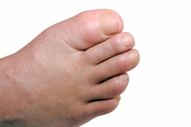 Diabetes and Swollen Feet