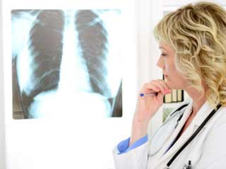 Risk Factors for Chronic Obstructive Pulmonary Disease (COPD)