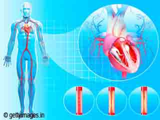 How To Reduce The Risk Of Coronary Heart Disease