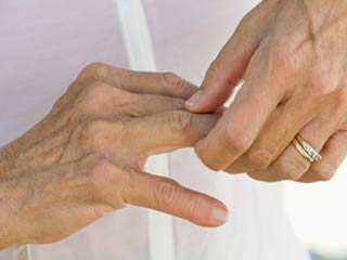 Psoriatic Arthritis : Symptoms and signs