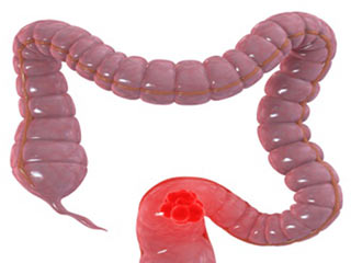 <strong>Colon</strong> Cancer : Understand the Risks