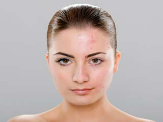 Home remedies for <strong>acne</strong> scars