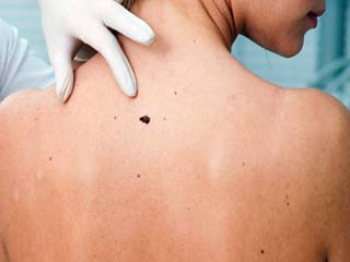 Home <strong>remedies</strong> to get rid of back acne scars