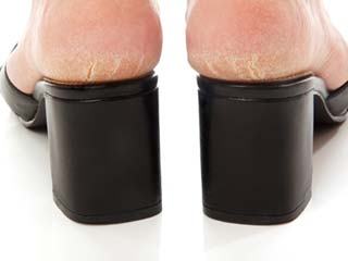 Best home remedies for cracked heels