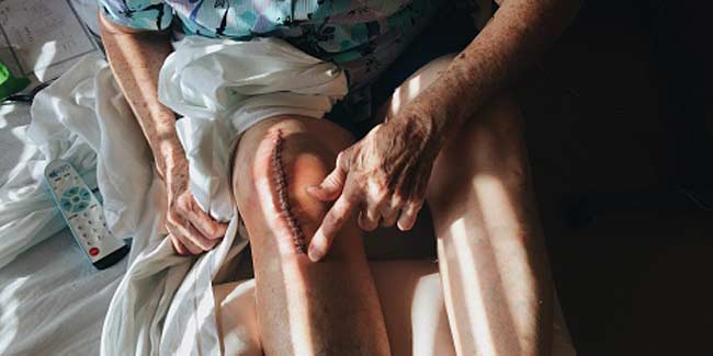 4 Things to know before considering knee replacement surgery