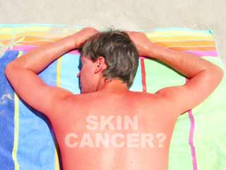 Vitamin B3 cuts skin <strong>cancer</strong> <strong>risk</strong>, finds study