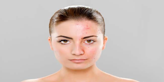 Know all about acne vulgaris