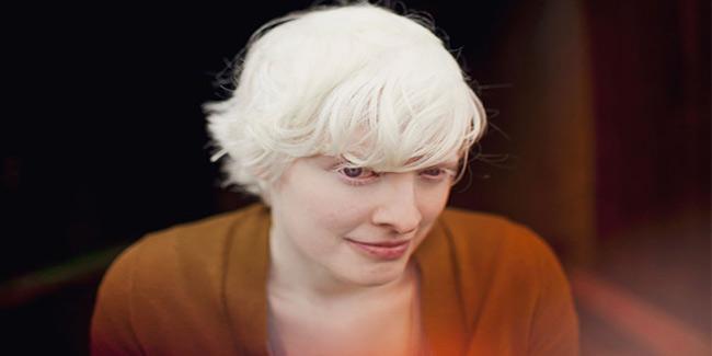 Dating website for albinos