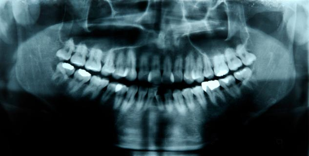 Wisdom tooth in Hindi
