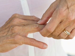 Experimental Therapy reverses Symptoms of Arthritis