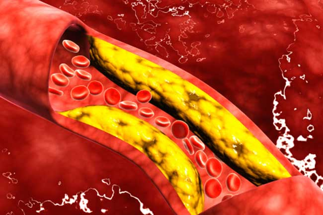 Clean Your Blood Vessels and Clogged Arteries Naturally | Home Remedies