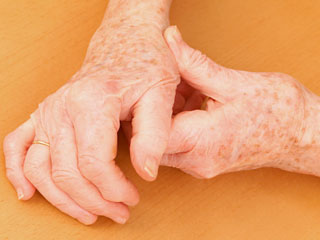 Blood Test for <strong>Osteoarthritis</strong> may be Available Soon
