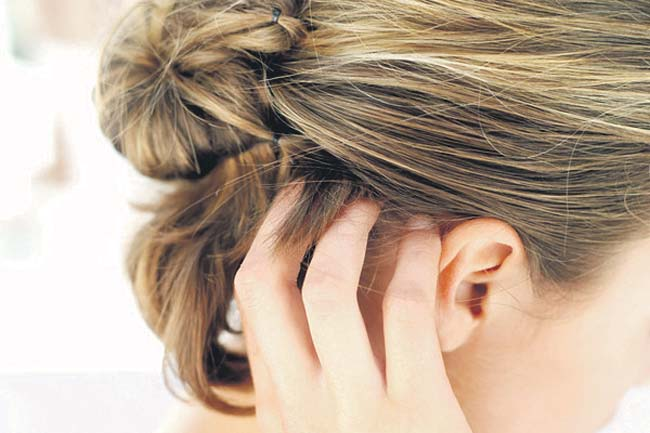 10 Effective Home Remedies To Treat Hair Dye Allergies Home Remedies