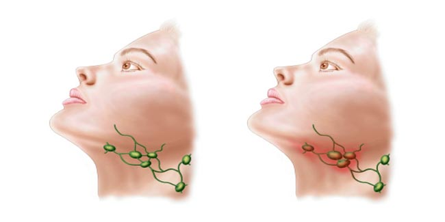 Image result for गले के कैंसर