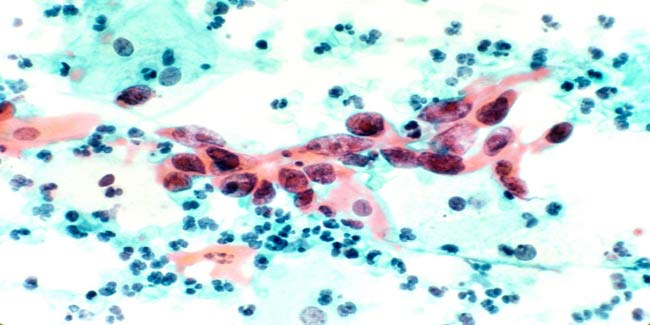 Cervical Cancer: Causes, Risks and Treatment