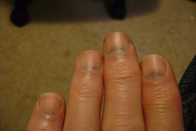 7 Nail Problems You Should Look Out For