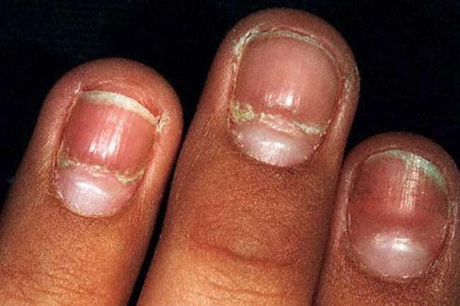 Thinning Nails