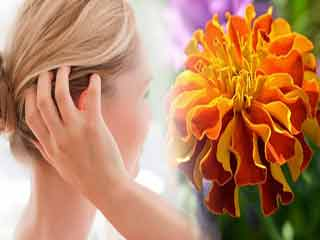 Itchy scalp? Fix it with marigold flowers