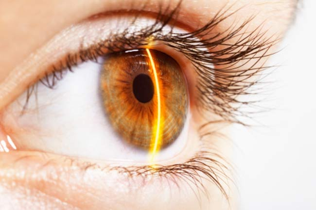 Lasik improves uncorrected vision (Pro)