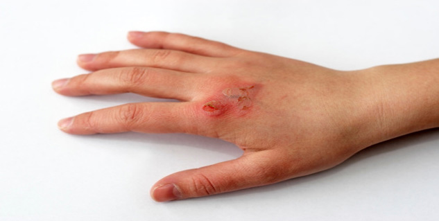 How long does it take for burn pain to go away?
