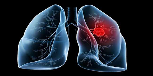 Image result for चिकनगुनिया का बुखार, डेंगू फीवर, Encephalitis , ब्रेन मलेरिया