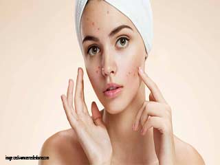 Home remedies to Remove acne marks