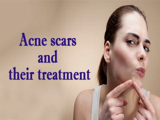 <strong>Acne</strong> scars and their treatment