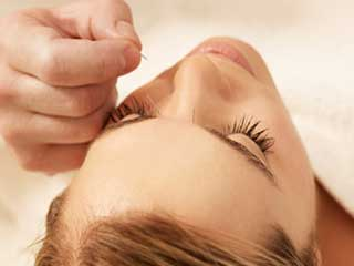 Cosmetic acupuncture is the new rage for anti-ageing