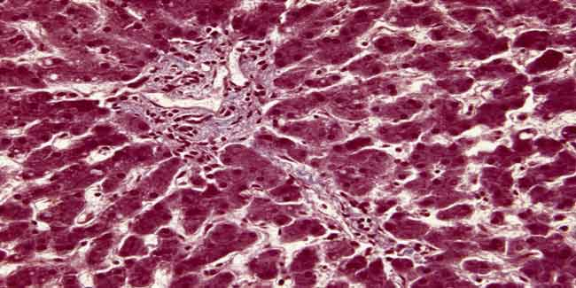 3D print of tissues which camouflage liver cells | Latest