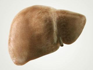 Image result for फैटी लीवर