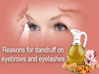 <strong>Reasons</strong> for dandruff on eyebrows and eyelashes