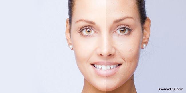 Image result for चेहरे से धब्बे और झाइयों